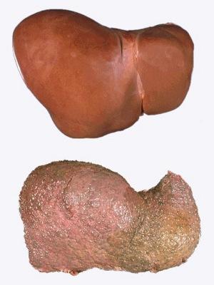 Печінка здорової людини та печінка<br>того, хто «культурно» вживає