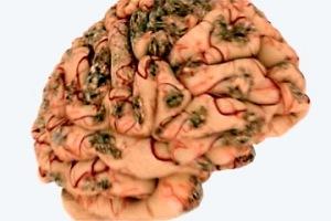 Руйнуються мозок і нервова система